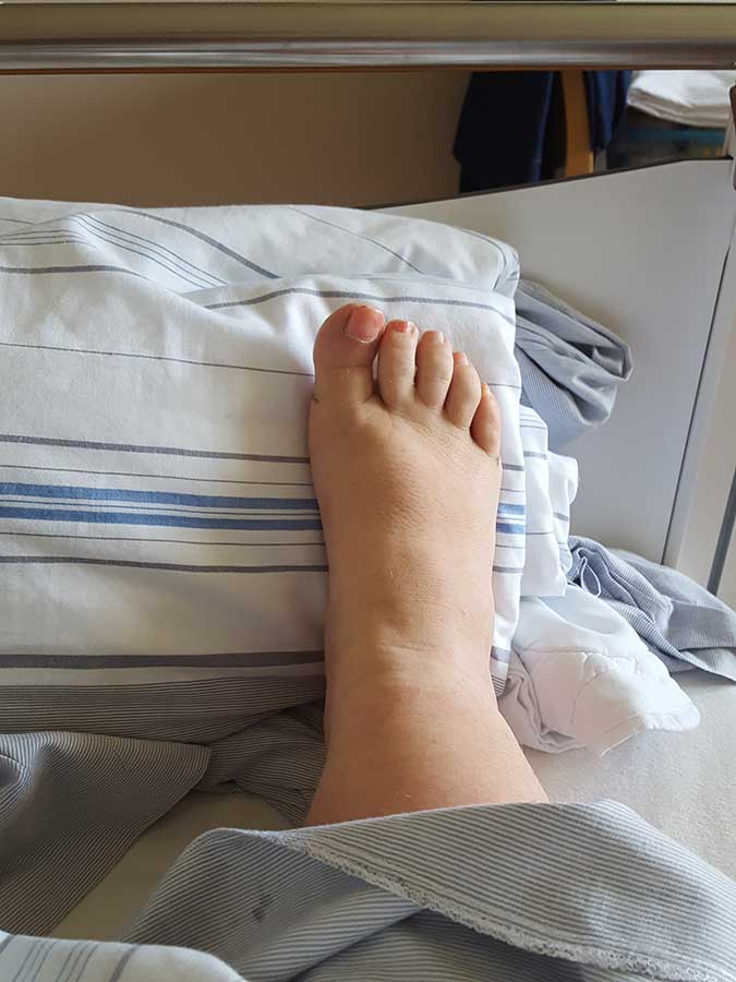 Sandra Dirks - Fuß ohne Bandage